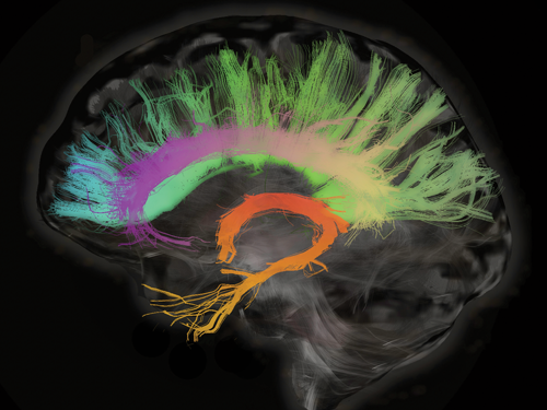 A conceptual illustration of a human brain