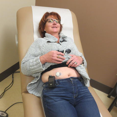 Lisa Conley shows the placement of her insulin pump on her abdomen.