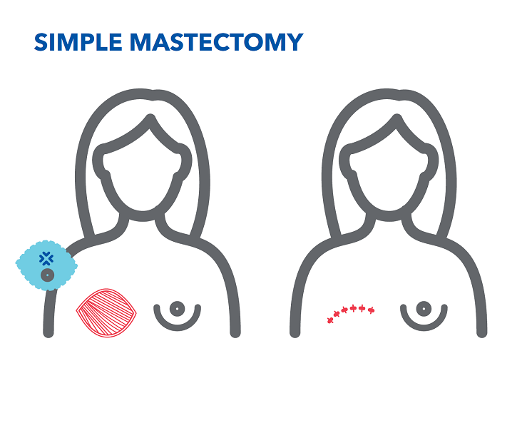 simple-mastectomy